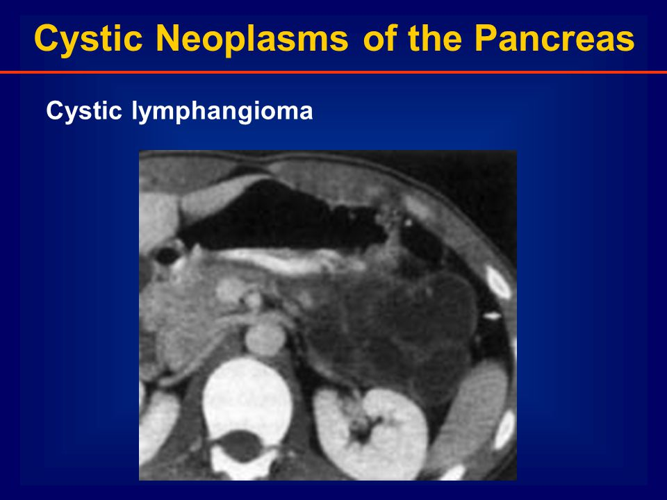 Cystic Neoplasms of the Pancreas