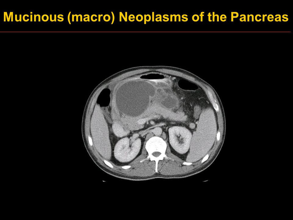 Mucinous (macro) Neoplasms of the Pancreas