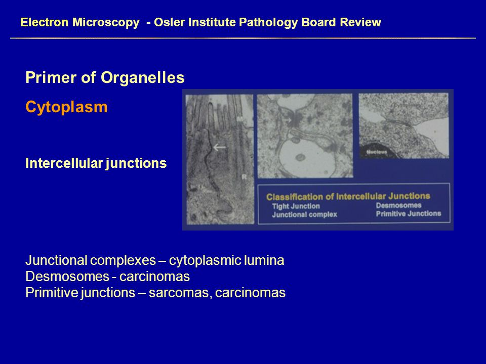 Electron Microscopy - Osler Institute Pathology Board Review