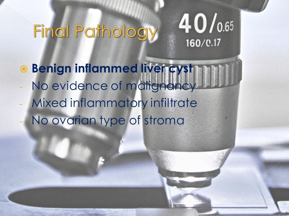 Final Pathology Benign inflammed liver cyst No evidence of malignancy