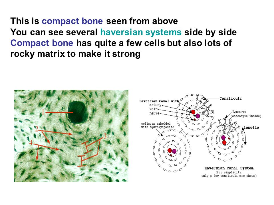 This is compact bone seen from above You can see several haversian systems side by side Compact bone has quite a few cells but also lots of rocky matrix to make it strong