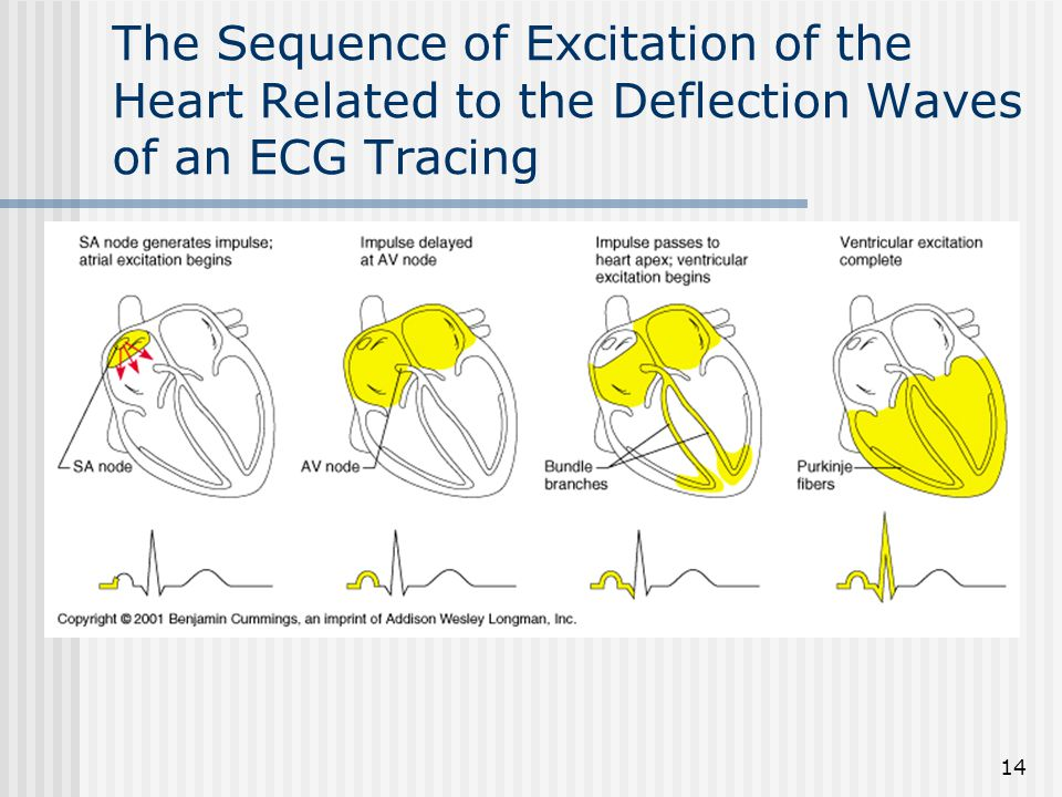 The Sequence of Excitation of the Heart Related to the Deflection Waves of an ECG Tracing