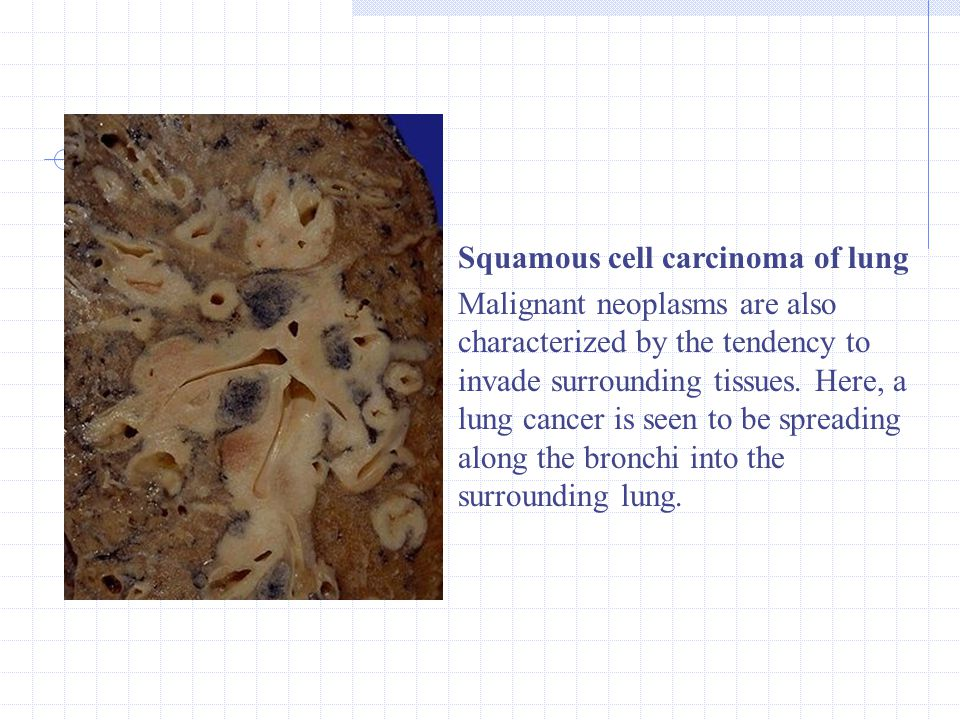 Squamous cell carcinoma of lung