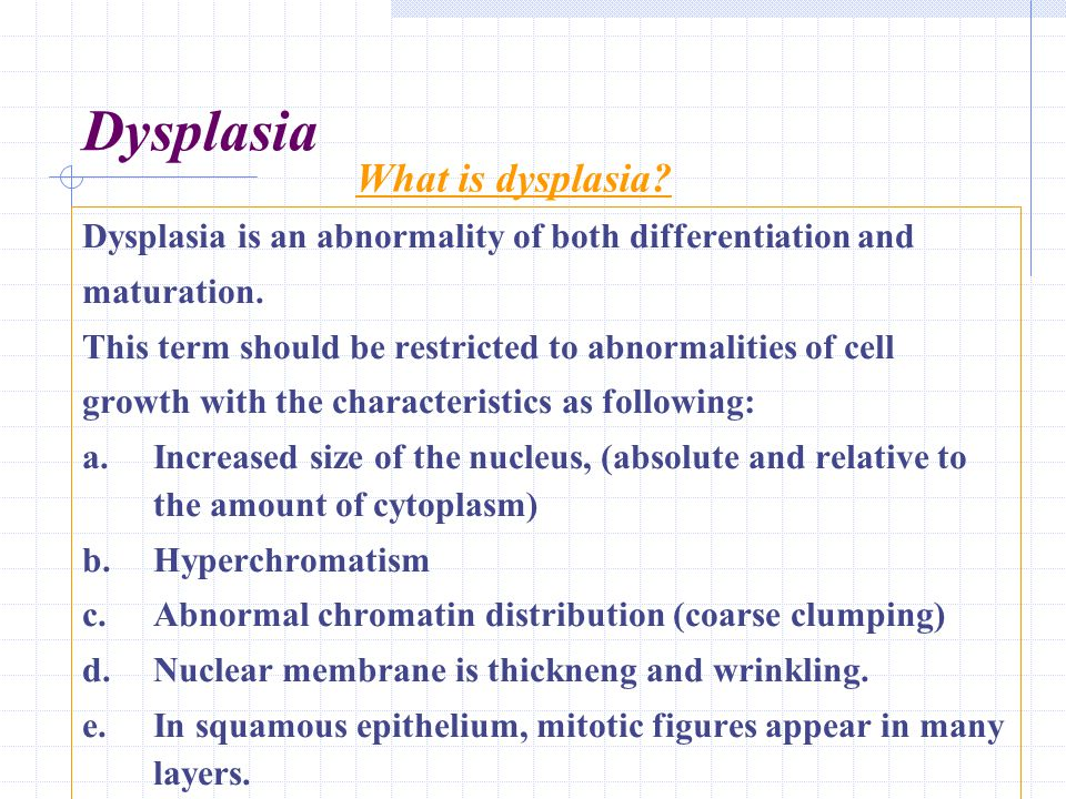 Dysplasia What is dysplasia