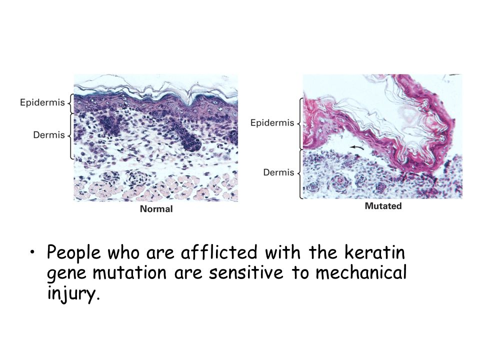 People who are afflicted with the keratin gene mutation are sensitive to mechanical injury.