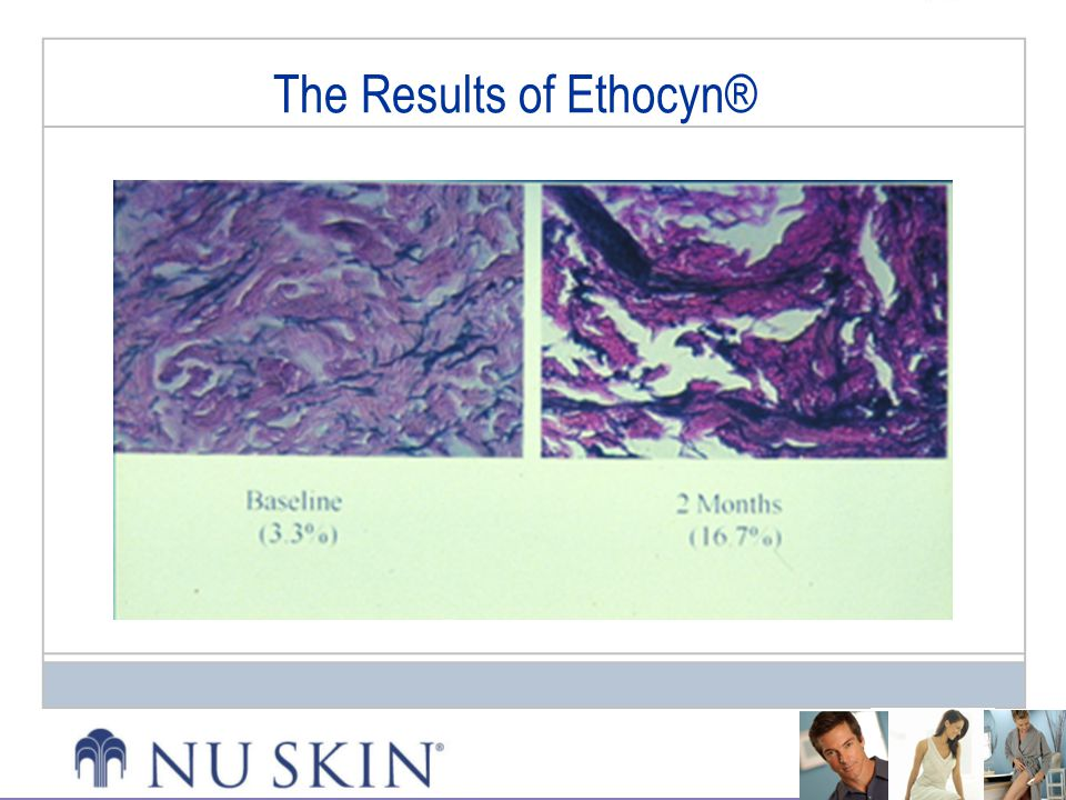 The Results of Ethocyn®