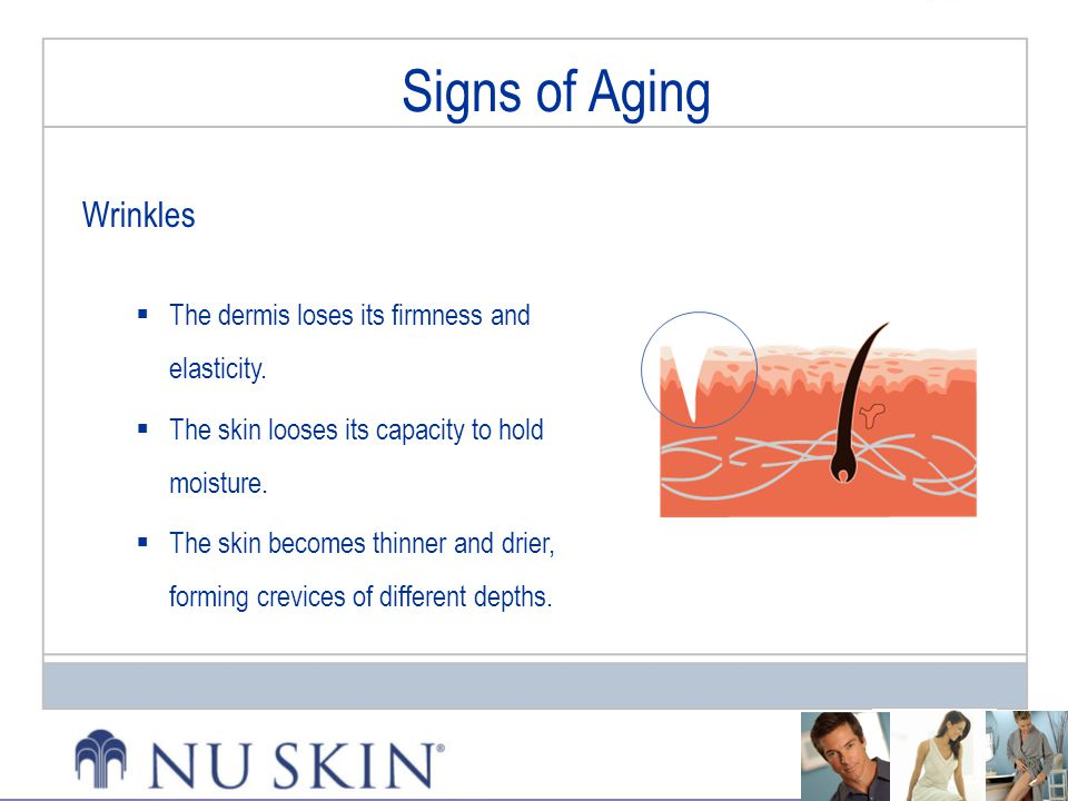Signs of Aging Signs of Aging Wrinkles