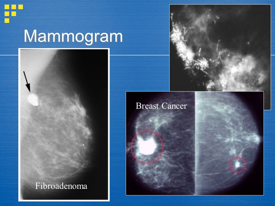 Mammogram Breast Cancer Fibroadenoma