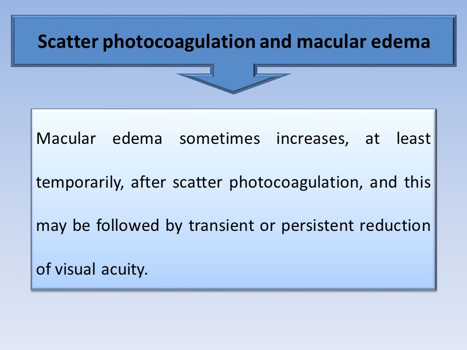 Scatter photocoagulation and macular edema