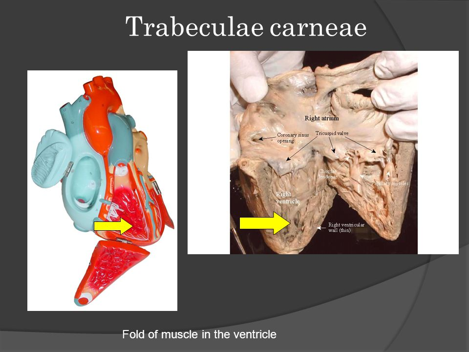 Trabeculae carneae Fold of muscle in the ventricle