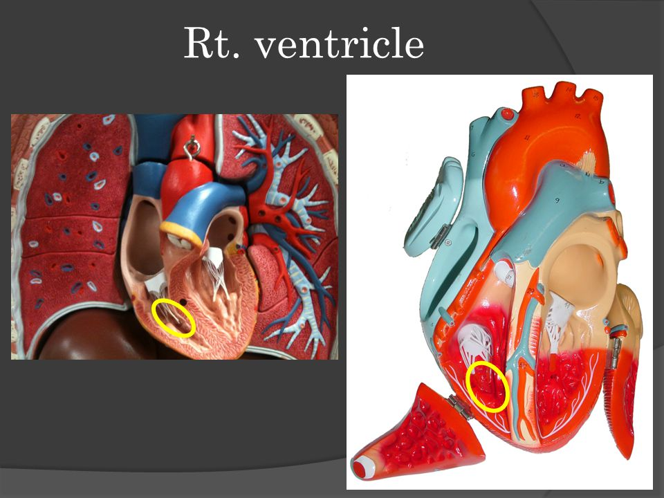 Rt. ventricle