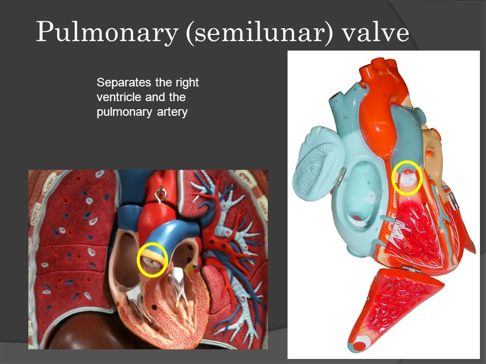 Pulmonary (semilunar) valve