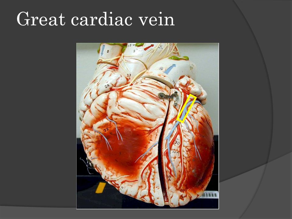 Great cardiac vein
