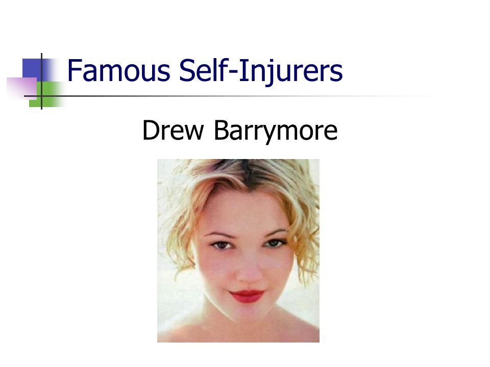 Famous Self-Injurers Drew Barrymore