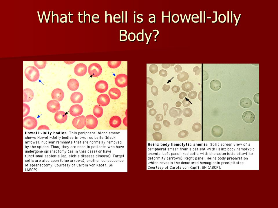 What the hell is a Howell-Jolly Body