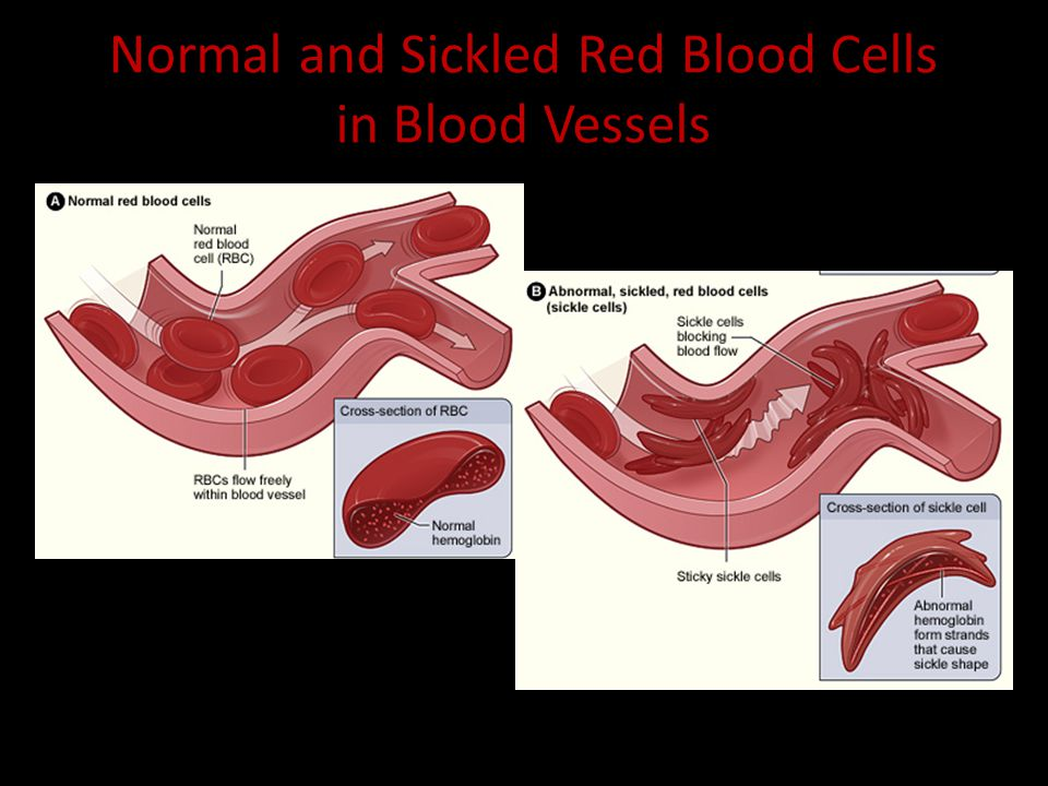 Normal and Sickled Red Blood Cells in Blood Vessels