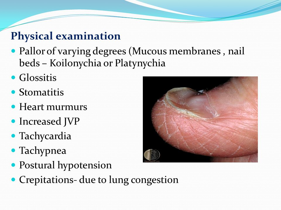 Physical examination Pallor of varying degrees (Mucous membranes , nail beds – Koilonychia or Platynychia.