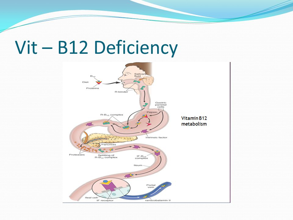 Vit – B12 Deficiency