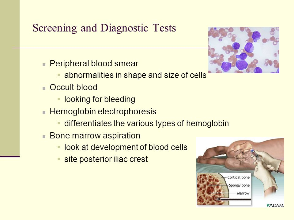 Screening and Diagnostic Tests