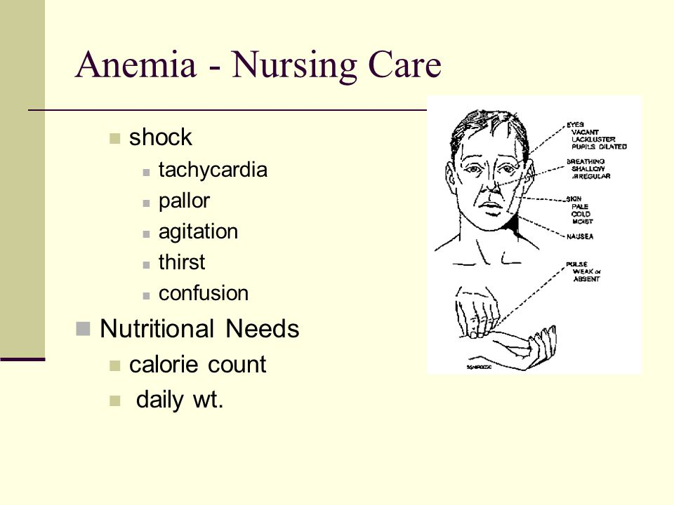 Anemia - Nursing Care Nutritional Needs shock calorie count daily wt.