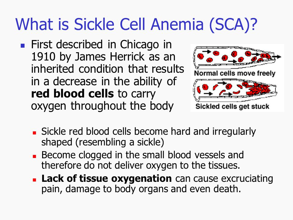 What is Sickle Cell Anemia (SCA)