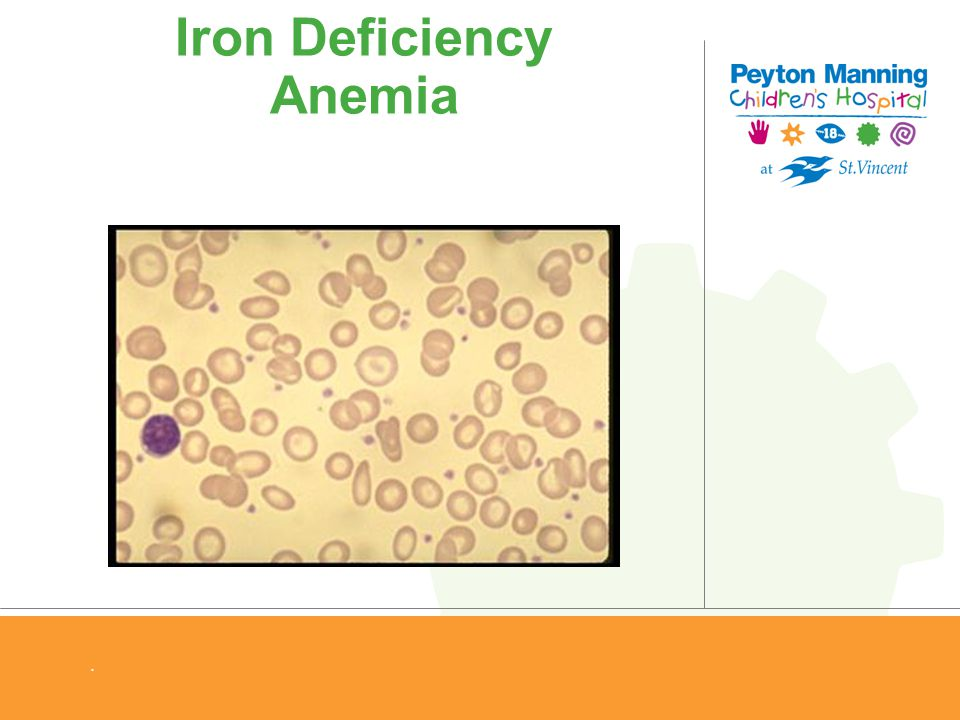 hematocrit for female with iron deficiency anemia Any indication of iron-deficiency anemia serum ferritin declined by approxi- iron-deficiency anemia in female (hb), hematocrit (hct), and red blood cell.