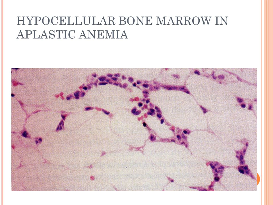 HYPOCELLULAR BONE MARROW IN APLASTIC ANEMIA