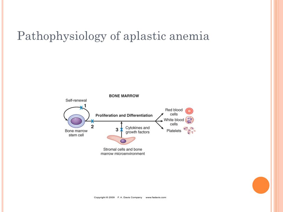 Pathophysiology of aplastic anemia