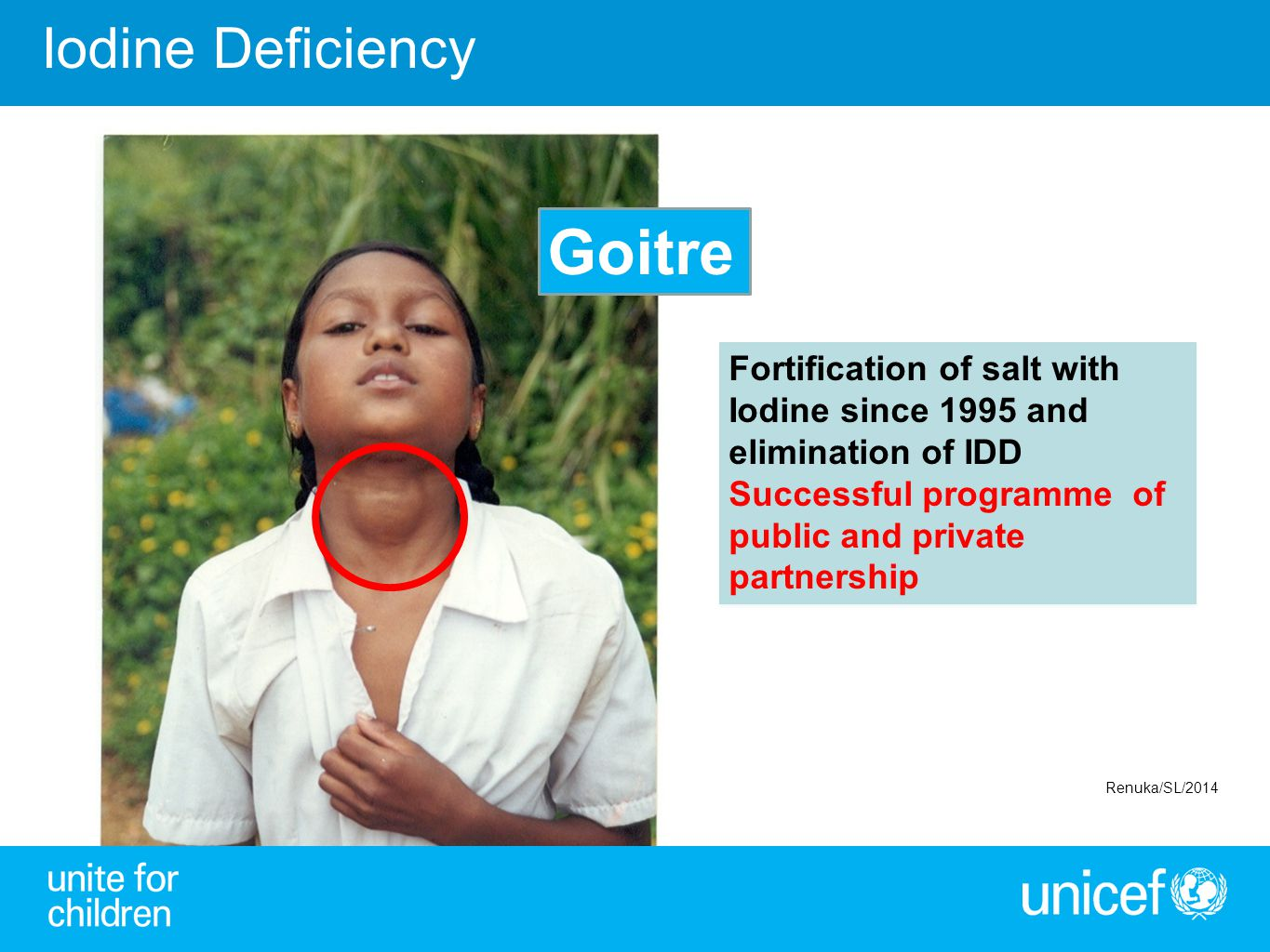 Goitre Iodine Deficiency Fortification of salt with