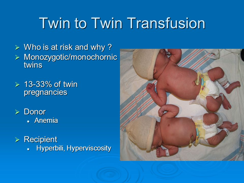 Twin to Twin Transfusion