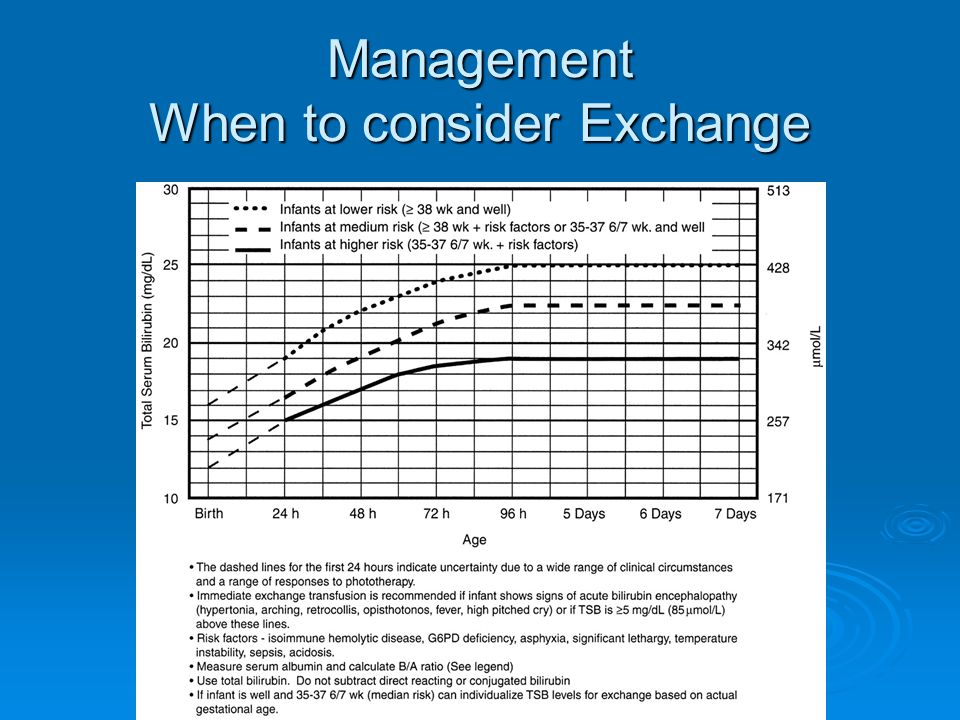 Management When to consider Exchange