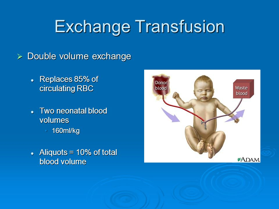 Exchange Transfusion Double volume exchange