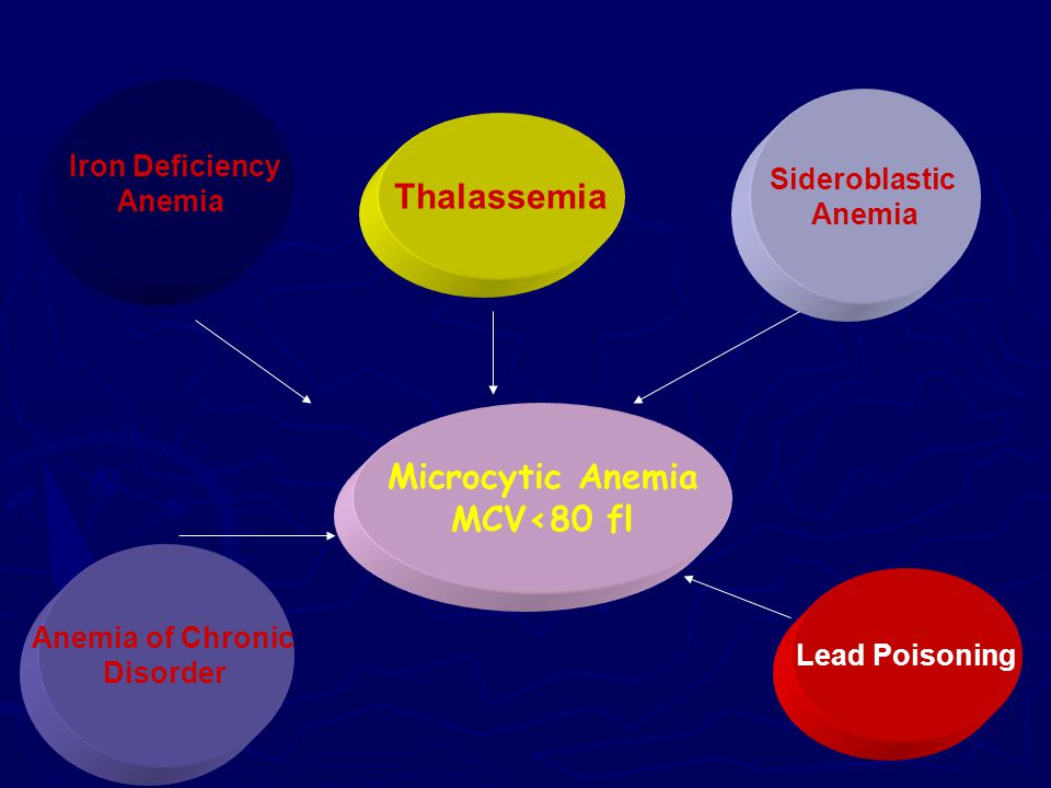 Thalassemia Microcytic Anemia MCV<80 fl Iron Deficiency