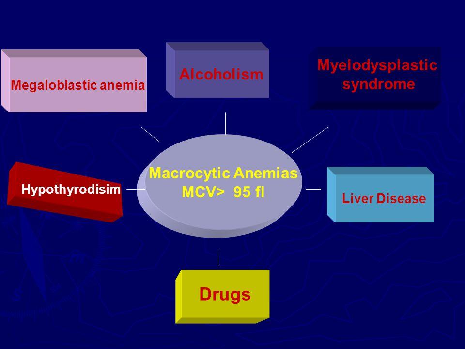 Drugs Myelodysplastic Alcoholism syndrome Macrocytic Anemias