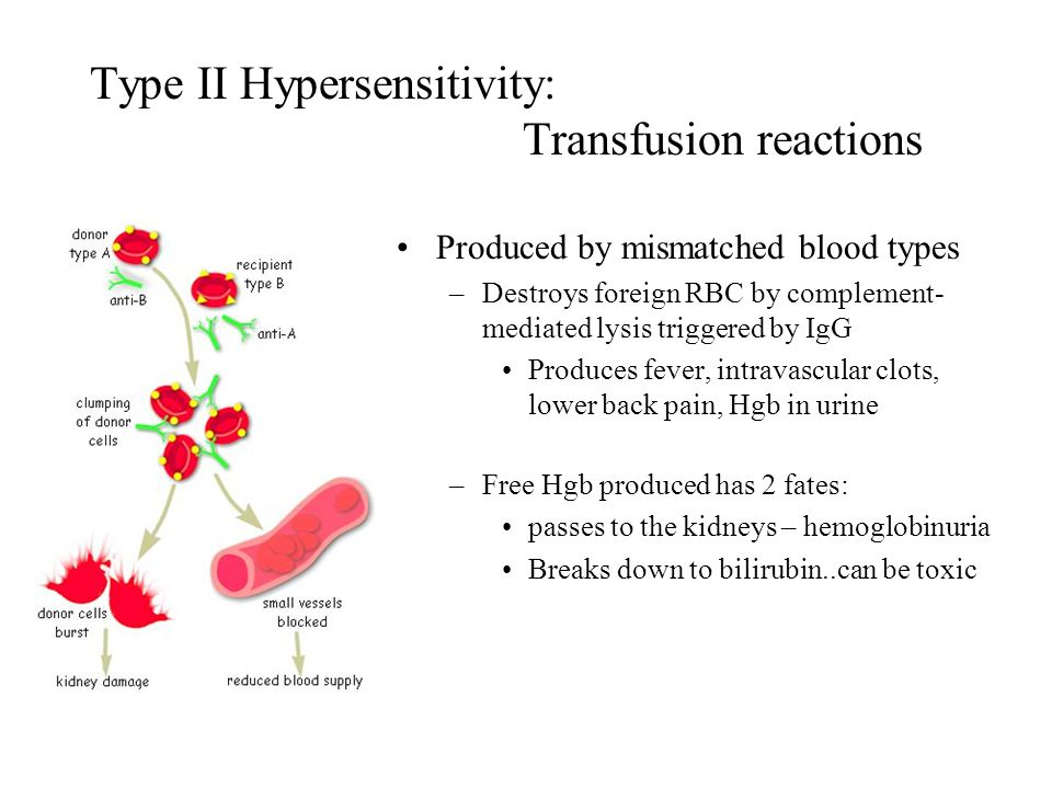 Type II Hypersensitivity: Transfusion reactions