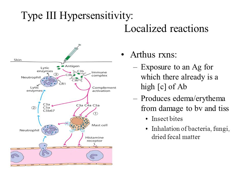 Type III Hypersensitivity: Localized reactions