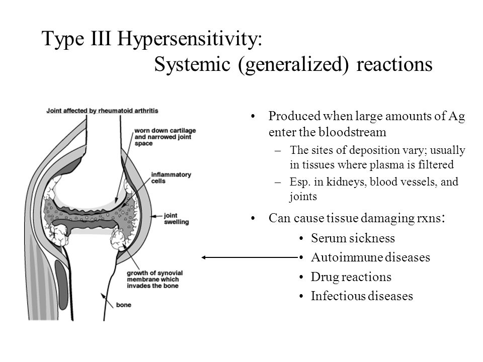 Type III Hypersensitivity: Systemic (generalized) reactions