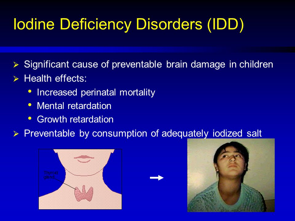 Iodine Deficiency Disorders (IDD)