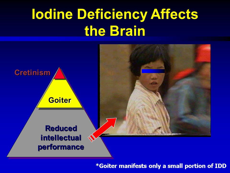 Iodine Deficiency Affects the Brain