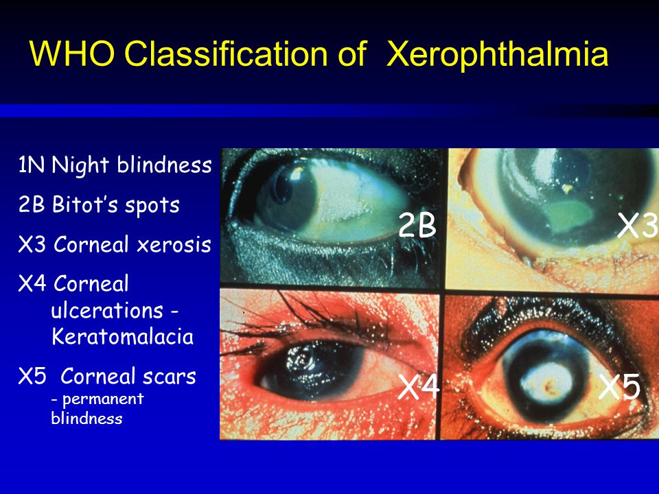 WHO Classification of Xerophthalmia