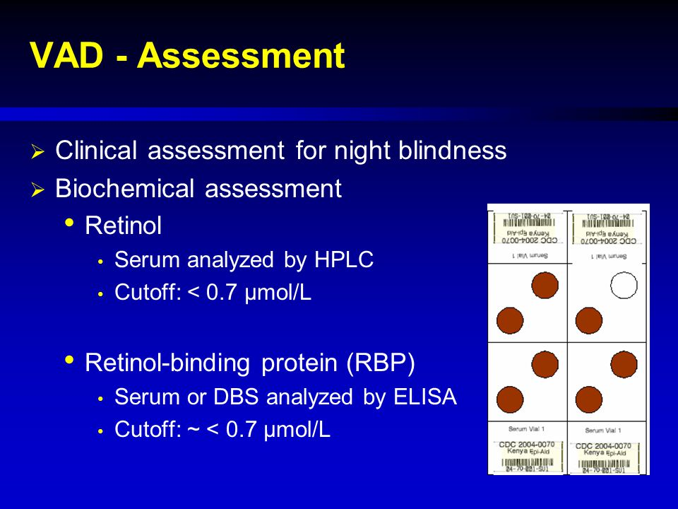 VAD - Assessment Clinical assessment for night blindness