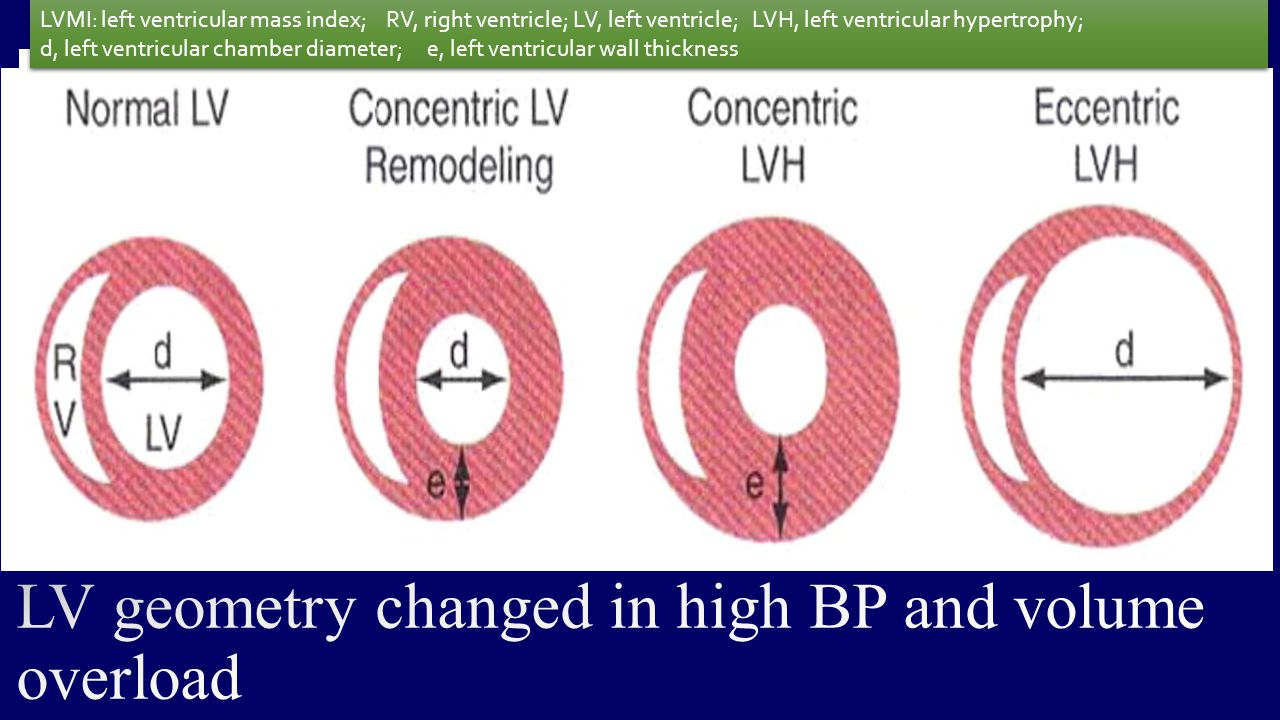LV geometry changed in high BP and volume overload