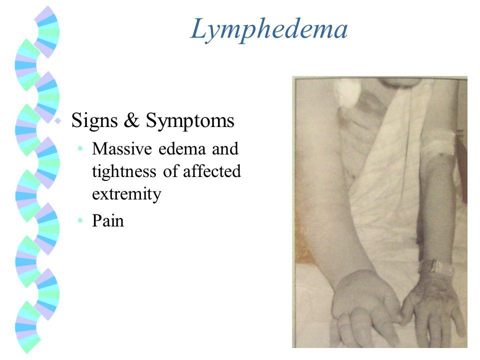 Lymphedema Signs & Symptoms