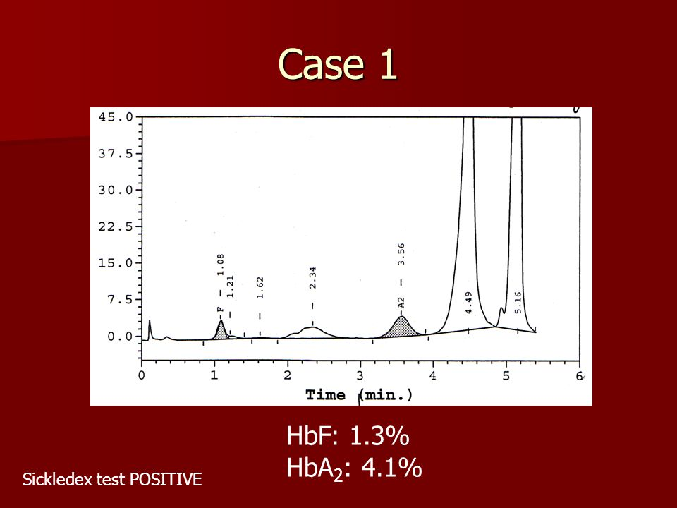 Case 1 HbF: 1.3% HbA2: 4.1% Sickledex test POSITIVE