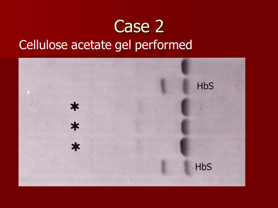 Case 2 Cellulose acetate gel performed HbS HbS