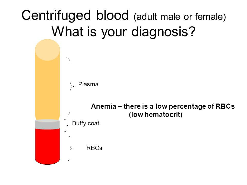 Centrifuged blood (adult male or female) What is your diagnosis