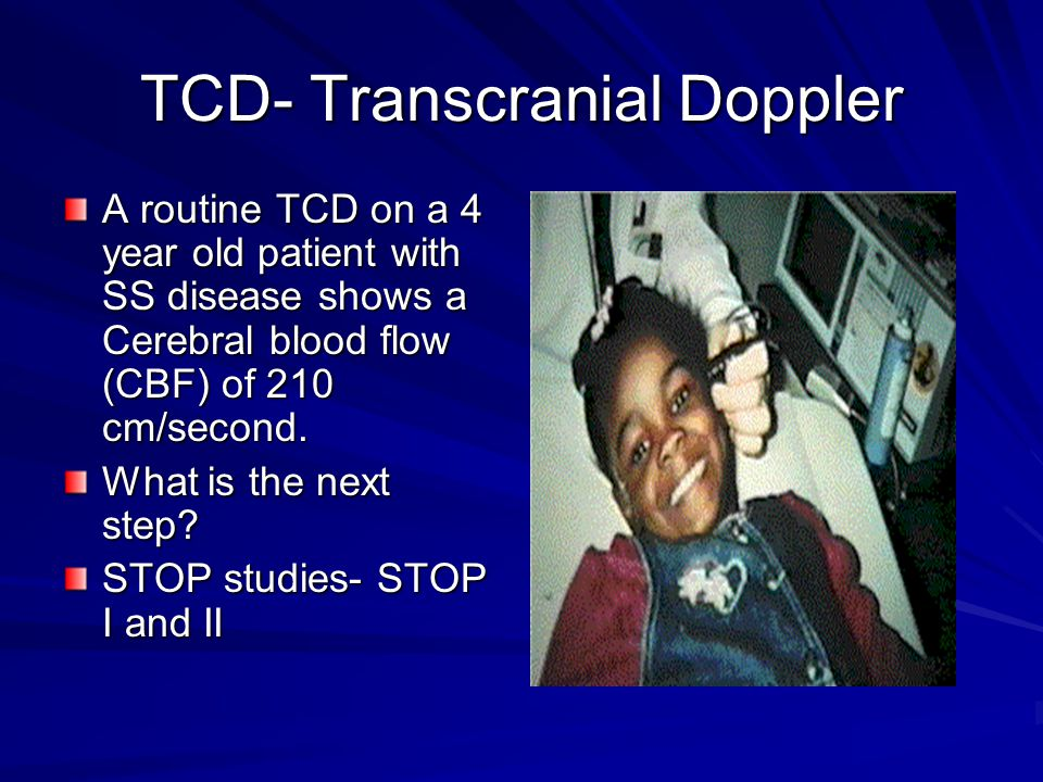 TCD- Transcranial Doppler