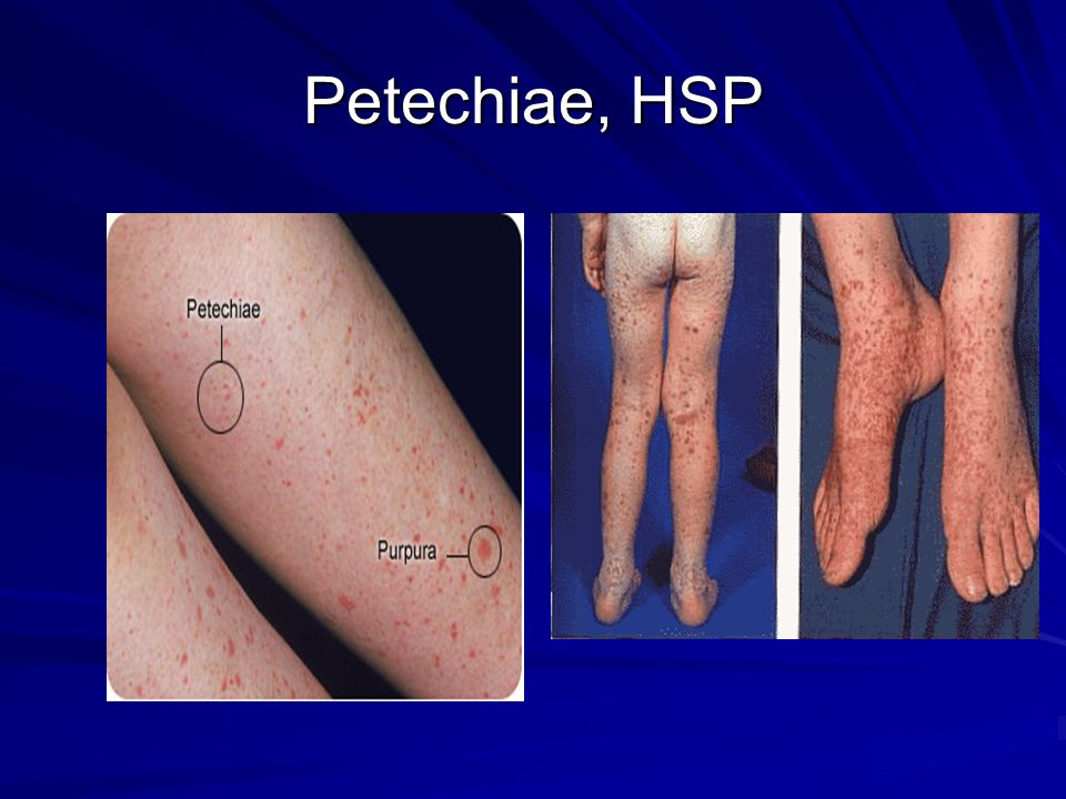 Petechiae, HSP