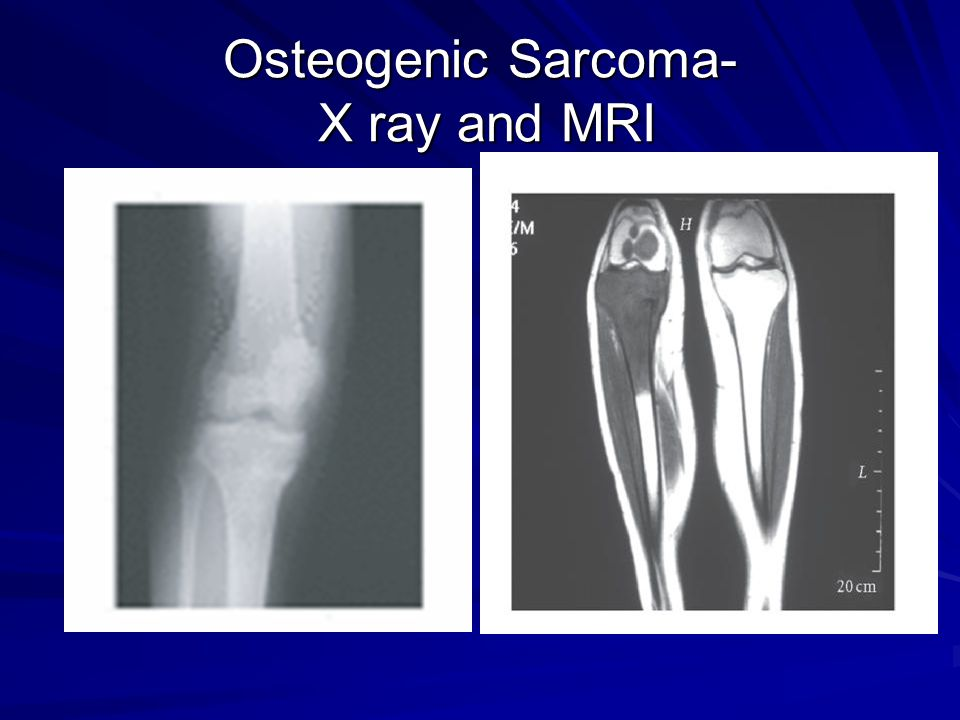 Osteogenic Sarcoma- X ray and MRI