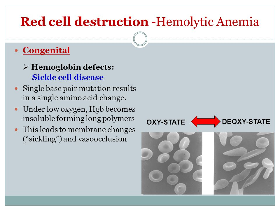 Red cell destruction -Hemolytic Anemia